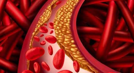 Lipid-&-Cholesterol